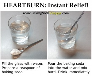 Baking Soda for Heartburn